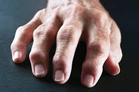 quicker diagnosis of rheumatoid arthritis
