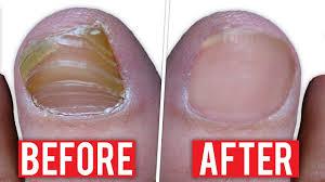 fingernail fungus treatment best natural remedy for fingernail fungus