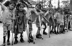 Resultado de imagen de poliomielitis