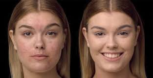 how to apply foundation on oily or blemish e skin