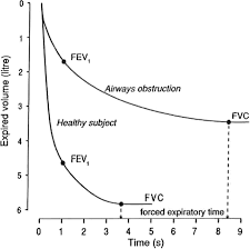 Lung Capacity Chart By Age Lung Volumes And Forced Ventilatory Flows European