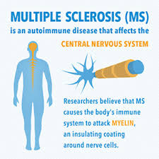 Ms Views And News Multiple Sclerosis By The Numbers Facts