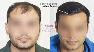Hair Line Design Transplant How The Success Of Hair Transplant Surgery