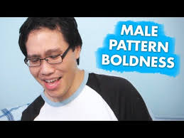 Male Pattern Boldness Magnificent Male Pattern Boldness YouTube