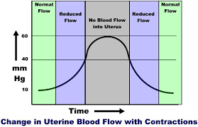 Tracking Contractions Chart Monitoring Uterine Activity During Labor A Comparison Of