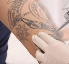 Removing Tattoos With Sound Rap Tattoo Removal Virtuul News