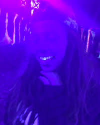 Fake Tooth Black Light Found Out My Fake Tooth Glows Under Black Light Album On Imgur