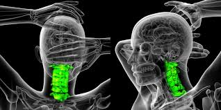 rheumatoid arthritis of the cervical spine