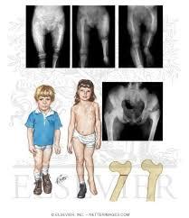 Coxa Vara Congenital Short Femur With Coxa Vara