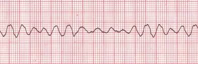 Image result for ventricular fibrillation ecg