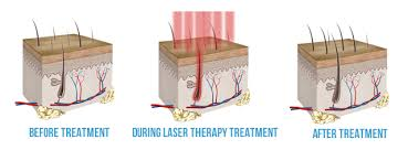 Laser, light, therapy, for, hair