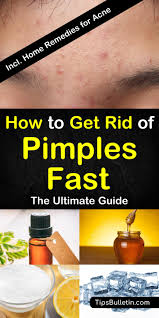 how to get rid of pimples fast with 8 excellent home remes including tips