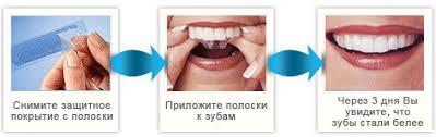 Как правильно использовать <b>полоски для отбеливания</b> зубов ...