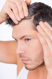 hair loss information and treatment in