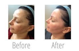 best skin resurfacing