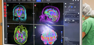 Promedica My Chart Help Innovative Technology Helps Neurosurgeons With 3d Map Of