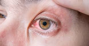 Doctors Note For Pink Eye Conjunctivitis Pink Eye A Common Fall Illness