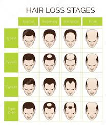 Hair Type Chart Men Hair Loss Stages And Types For Men Stock Vector Medeja
