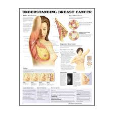 Breast Chart Understanding Breast Cancer Chart