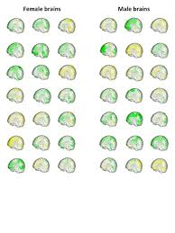 what are some differences between male and female brains quora this is a popular issue on quora you can perform a search on the quora topic male female brain differences