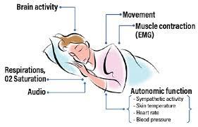 seizure detection and sudep prevention