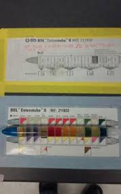 Enterotube Results Chart 15 Best Microlab 4 Biochemistry Metabolism Images