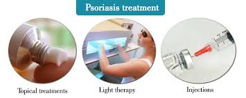 Psoriasis Symptom Causes Types Treatment How To Relief