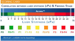 Fibroscan Score Chart What Is A Fibroscan Hepatitis C Treatment