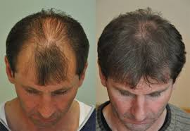 Male Pattern Baldness Cure Awesome Male Pattern Baldness Treatment Abroad Checklist WEBSITES