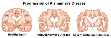 Image result for pics regarding alzheimer's