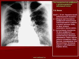 ОГК Диссеминации Рентгенодиагностика диффузных и   интерстициальные и диссеминированные процессы легких представляют одну из сложнейших проблем клинической медицины с точки зрения диагностики и лечения