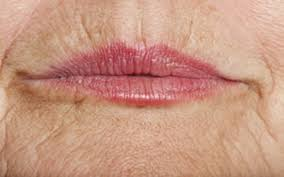 lip wrinkles aging of the lips