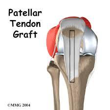 acl patellar tendon graft