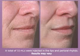 juvederm volbella lip injection