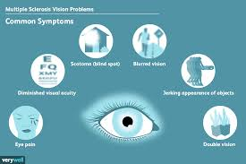 Vision Problems Caused By Ms