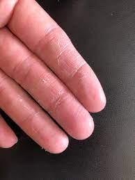 指先 の 皮 剥ける