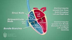 Types Of Arrhythmia Chart Arrhythmias St Vincents Heart Health