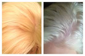 Shimmer Lights Shampoo Before And After Before And After Using Clairol Shimmer Lights I Left It On