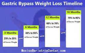 gastric byp weight loss