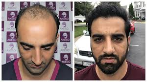 best hair transplant in india at akeso