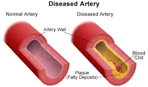 Image result for coronary block