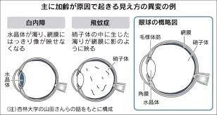 目 が チカチカ する 原因