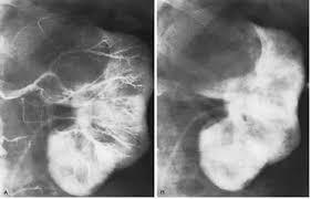 МПС Кисты почек Портал радиологов Рисунок 3 а селективная ангиография почечной артерии в нефрограмма В области верхнего полюса видна бессосудистая зона На нефрограмме в видно
