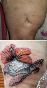 10 уникальных татуировок которые мастерски преобразили шрамы ридус