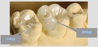dental onlay sunrise dental inlays and onlays dental inlays and onlays sunrise