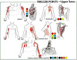 Pain Referral Patterns Adorable Trigger Point Referral Patterns Balance In Motion Bodywork