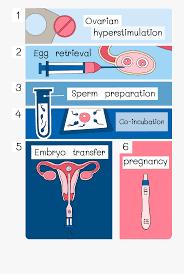 Ivf Chart Intracytoplasmic Sperm Injection Process Ivf Flow Chart