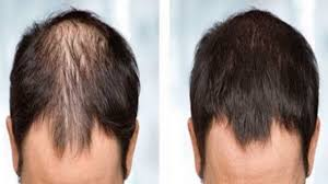 Male Pattern Baldness Causes Magnificent Male Pattern Baldness Causes Symptoms Treatments YouTube