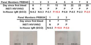 Sensitivity Of A Rapid Point Of Care Assay For Early Hiv