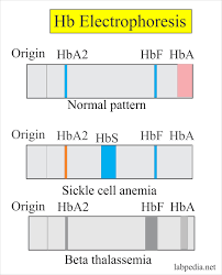 Haemoglobin Part 2 Haemoglobin Electrophoresis Hb